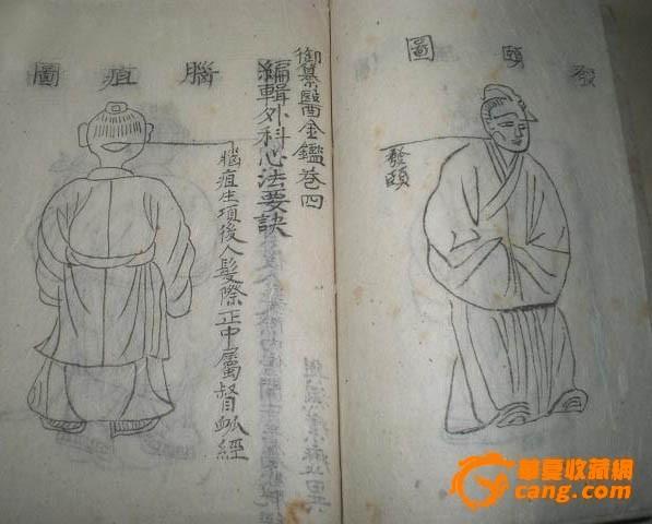 手抄古医书一册(20余幅手绘图)